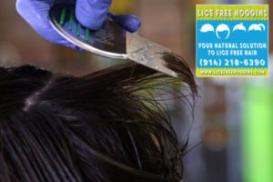 Pest Control - Head Lice Removal and Lice Treatment Service Westchester New York